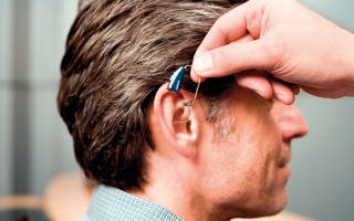Отзывы о слуховых аппаратах